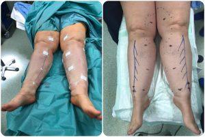 antes y después de quirófano